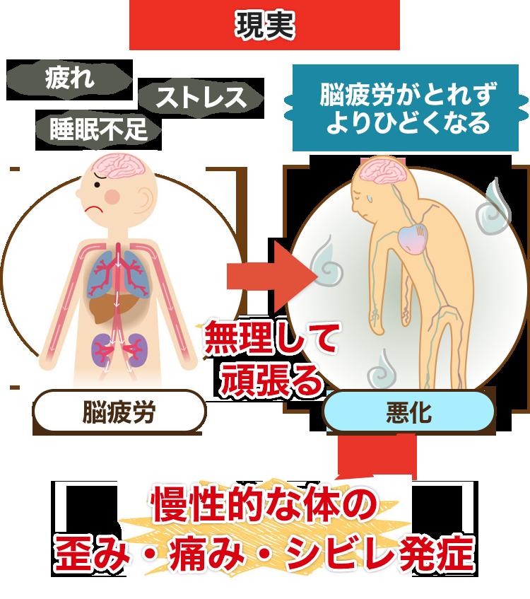 慢性的な体の歪み・痛み・シビレ発症