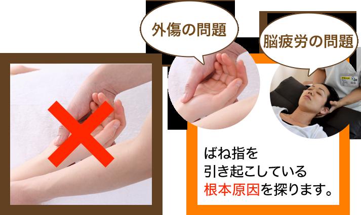 骨盤王国のバネ指の施術