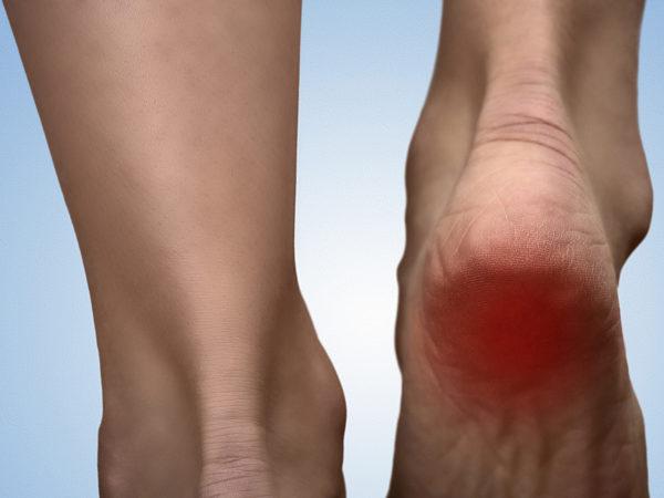 足底腱膜炎の特徴と骨盤王国の考え方とアプローチについて ~実際のお客様の例~